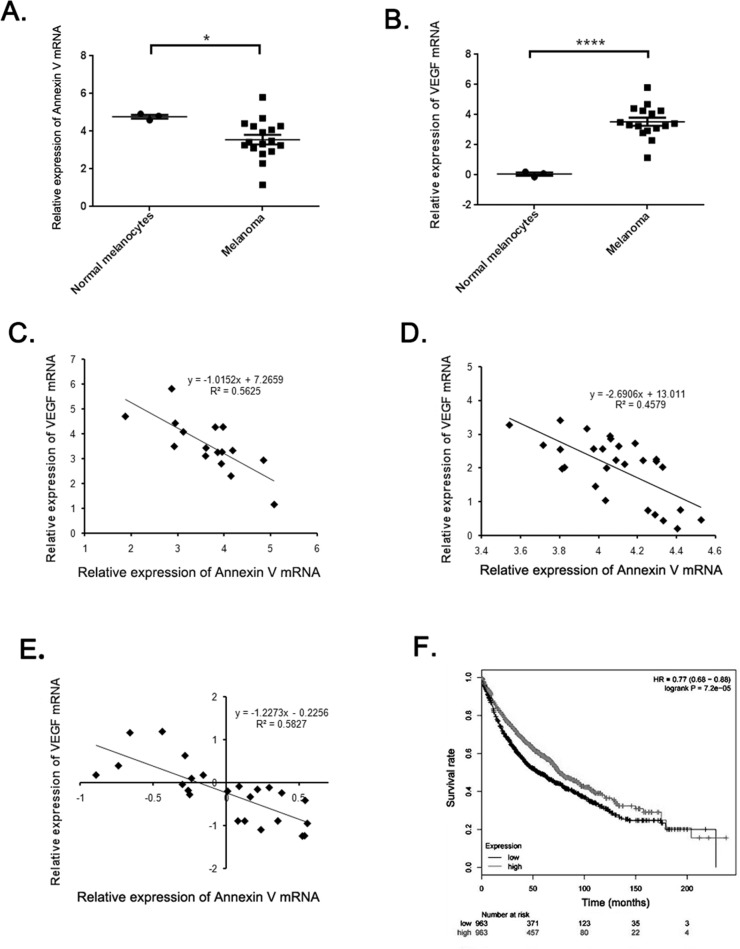 The negative correlation between Annexin V and VEGF expression in melanoma (A-B) Analysis of Annexin V and VEGF expression levels in normal melanocytes and most melanomas using Harlin melanoma dataset. The results showed a significant decrease of Annexin V levels and a remarkable rise of VEGF levels in most melanomas, compared to the normal group. (Mean ± SEM, n=8, *p