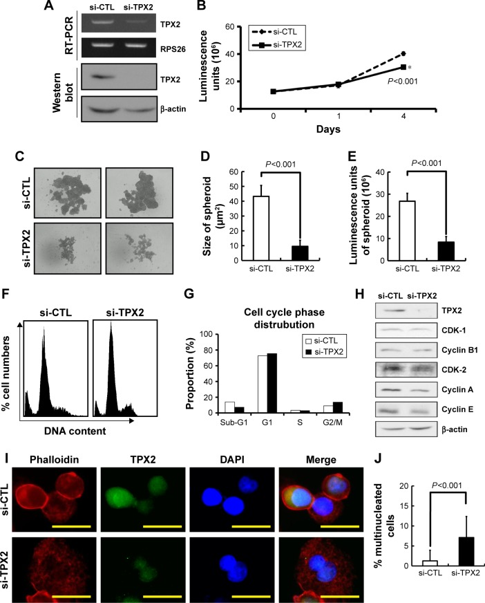 TPX2 depletion changes the cell fitness in LNCap prostate cancer cell line. Notes: Scrambled siRNA (20 nM, si-CTL) or the siRNA oligos pool against TPX2 (20 nM, si-TPX2) was transfected into LNCap human prostate cancer cells for 96 h. ( A ) RT-PCR was used to detect the mRNA levels of TPX2 in LNCap cells. siRNA-transfected cells were harvested and lysed for immunoblotting to determine the protein levels of TPX2. β-actin was used as a loading control. Protein expression was quantified by densitometric analysis. ( B ) Cell viability was measured using the CellTiter-Glo Luminescent Cell Viability Assay, and the luminescence units indicating cell growth were measured and plotted as the growth curve. ( * The cell growth was inhibition in si-TPX2 treated cells compared with si-CTL treated cells). ( C ) Representative data and ( D ) quantitative results of siRNA-transfected cells that were seeded in ultralow attachment 96-well microplates for spheroid formation assays by using ImageJ software. ( E ) LNCap spheroids presented irregular morphology; hence, viable cells were measured using the CellTiter-Glo Luminescent Cell Viability Assay, and the luminescence units indicating cell growth were measured and plotted as the bar plot. ( F ) Scrambled siRNA (20 nM, si-CTL) or the siRNA oligos pool against TPX2 (20 nM, si-TPX2) was transfected into LNCap cells for 72 h, followed by cell harvesting. The knockdown cells were fixed and stained with DAPI to examine the proportions of the cell cycle by using an image-flow cytometry assay. ( G ) Representative data for cell cycle proportions were analyzed and quantified using Nucleoview NC-3000 software. ( H ) Western blot analysis of the levels of TPX2, CDK1, cyclin B1, CDK2, cyclin A, and cyclin E proteins in TPX2-targeted cells. β-actin was used as a loading control. ( I ) Representative images of TPX2 and Phalloidin (a high-affinity F-actin probe conjugated to the red-orange fluorescent dye, tetramethylrhodamine) immunofluorescence i