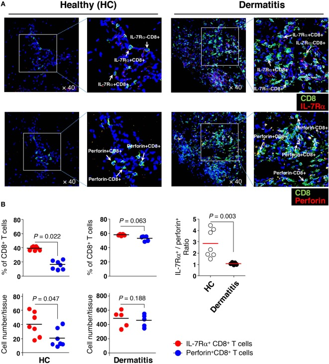 Greater numbers of interleukin (IL)-7Rα high effector memory (EM) CD8 + T cells than IL-7Rα low EM CD8 + T cells in the skin. (A) Immunofluorescence staining (40×) of CD8 + T cells (green) from non-lesional (healthy, HC) or lesional atopic dermatitis skin. IL-7Rα + CD8 + T cells (upper panel) representing IL-7Rα high EM CD8 + T cells were stained with antibodies (Abs) to IL-7Rα (red); <t>perforin</t> + CD8 + T cells (lower panel) representing IL-7Rα low EM CD8 + T cells, were stained with Abs to perforin (red). The image of the box was magnified twice and placed to the right of each image. (B) A quantitative measurement of IL-7Rα + and perforin + CD8 + T cells (frequency and number per tissue) in panel (A) , representing IL-7Rα high and IL-7Rα low EM CD8 + T cells, respectively. Four images per slide were evaluated for quantification. Data are representative of four independent experiments. Bars represent the mean, and p -values were obtained using the Wilcoxon matched pairs test (for comparing frequency and number between the two CD8 + T cell subsets) and Mann–Whitney U test (for comparing IL-7Rα + /perforin + ratio between HC and dermatitis).