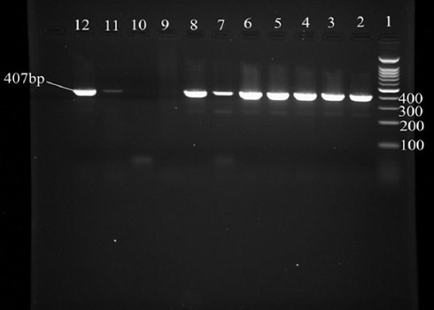 Agarose gel electrophoresis of <t>PCR</t> assay for the identification of Erysipelothrix rhusiopathiae. Lane 1: 100bp <t>DNA</t> marker; Lanes 2–8 and 11: positive samples; Lanes 10: negative control; Lane 12: Erysipelothrix rhusiopathiae ATCC 19414 as positive control.