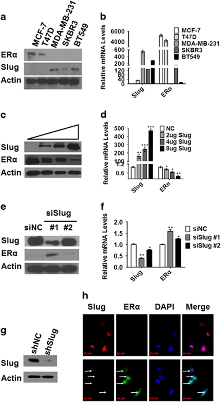 Negative relationship between Slug and ERα in human breast cancer cells. ( a , b ) Analysis of Slug and ERα expression levels in MCF-7, T47D, SKBR3, MDA-MB-231 and BT549 by western blot and RT–PCR. ( c , d ) Western blot ( c ) and RT–PCR ( d ) analysis of protein and mRNA levels as indicated in MCF-7 cells transfected with increasing concentrations (2, 4 and 8 μg, respectively) of Slug. ( e , f ) Western blot ( e ) and RT–PCR ( f ) analysis of protein and mRNA levels in MDA-MB-231 cells transfected with two different interference sequences of Slug (40 n m , separately). ( g ) Western blot analysis of Slug knockdown level in stable cell lines of MDA-MB231shSlug. ( h ) Immunofluorescence micrographs of Slug (red) and ERα (green) expression in MDA-MB-231shNC cells (upper) and MDA-MB-231shSlug (lower). DAPI is for nuclei (blue). Magnification, × 400. Protein and mRNA expression was normalized to β-actin. In figure 2d, NC means transfecting with control pcDNA3.1. In figure 2e and f, siNC is scrambled control siRNA used for transient transfection. ShNC without shRNA is used as a control by infecting pLKO.1 lentivirus in MDA-MB-231 cell line. Statistical analysis is performed using GraphPad Prism version 7.0. Means±s.d. is calculated by at least three independent experiments. * P