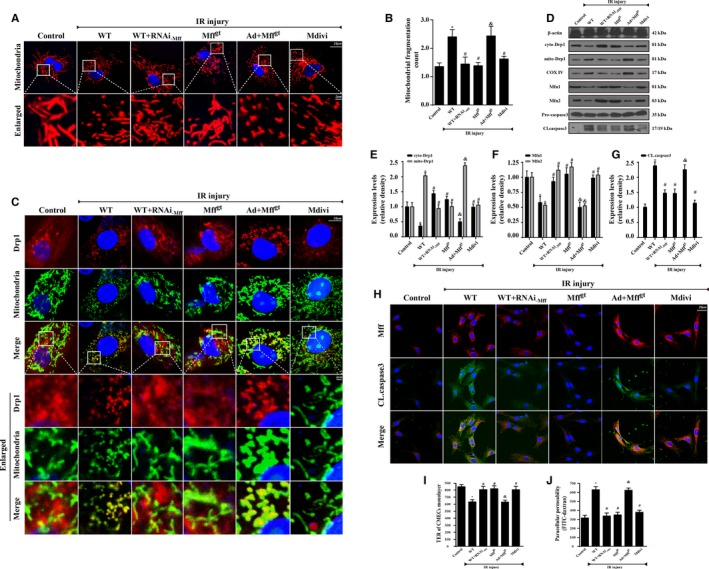 Mitochondrial fission factor (Mff) induced cardiac microcirculation endothelial cells (CMECs) apoptosis via excessive mitochondrial fission in vitro. Wild‐type (WT) mice– and homozygous Mff–deficient (Mff gt ) mice–derived CMECs were named WT and Mff gt groups, respectively. Furthermore, Mff gain‐of‐function experiments were performed in CMEC s from Mff gt using adenovirus vector (Ad+Mff gt group). Meanwhile, Mdivi‐1, an inhibitor of fission, was used in CMEC s from WT mice as the negative control group. The ischemia/reperfusion (IR) injury in vitro was mimicked by 30 minutes of hypoxia with serum starvation and 2 hours of reoxygeneration. A and B, Mitochondria of CMECs are labeled with anti‐Tom20 antibody to determine the number of cells with mitochondria fragmentation. The boxed area under each micrograph is enlarged to determine mitochondria fragmentation. To assess changes in mitochondrial morphology quantitatively, the aspect ratio ( AR ; the mitochondrial length) and form factor ( FF ; the degree of mitochondrial branching) were calculated for each cell (the minimum value for both parameters is 1). High FF and AR values show healthy mitochondria, whereas low FF and AR indicate fragmented mitochondria. C, Co‐localization of dynamin‐related protein 1 (Drp1) and mitochondria. The boxed area under each micrograph represents the amplification of the white square. More Drp1 was located on fragmented mitochondria while loss of Mff could reduce Drp1 migration on mitochondria. D through F, IR increased mitochondria‐Drp1 expression. Meanwhile, IR also reduced proteins related to mitochondrial fusion. The control of cytoplasm and mitochondrial fractionation in the Western blots are β‐actin and cytochrome c oxidase subunit IV , respectively. D and G, Caspase‐3 activation ( CL .caspase3 expression) was detected by Western blots. H, Mff and CL .caspase3 co‐location by immunofluorescence. I, Transendothelial electrical resistance ( TER ) and permeability examination in CMEC 
