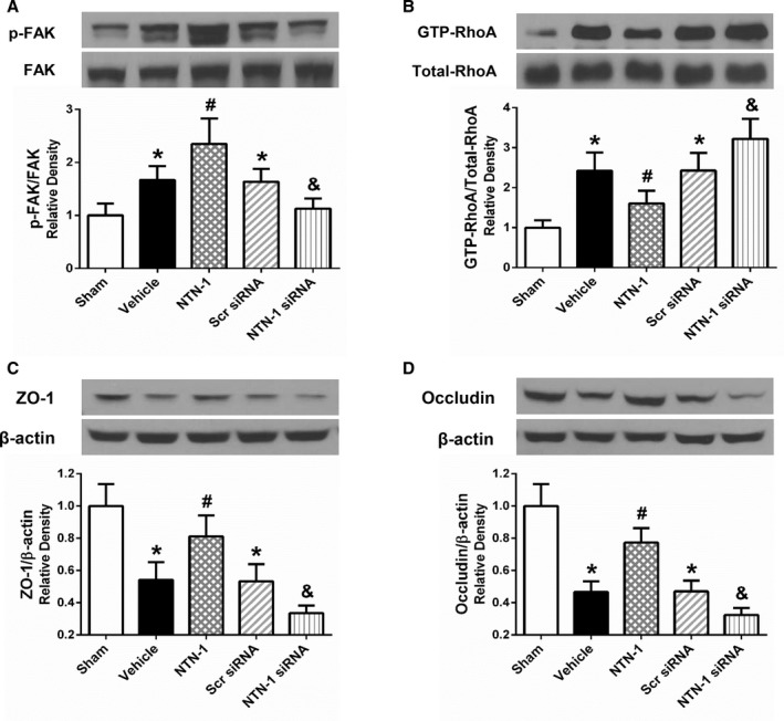 Changes in expressions of downstream signaling pathway of Focal Adhesion Kinase ( FAK )/RhoA after exogenous Netrin‐1 ( NTN ‐1) treatment and NTN ‐1 si RNA pretreatment at 24 hours post–subarachnoid hemorrhage ( SAH ). Exogenous NTN ‐1 significantly further enhanced the FAK phosphorylation (A), which resulted in the suppression of RhoA activity (B). While the endogenous NTN ‐1 was depleted by use of NTN ‐1 si RNA , the p‐ FAK level decreased (A), which augmented the RhoA activation (B). The RhoA activity was negatively related to the levels of endothelial tight junction proteins including ZO ‐1 (C) and Occludin (D) in the ipsilateral hemisphere. Relative densities of each protein have been normalized against the sham group. n=6 for each group. * P