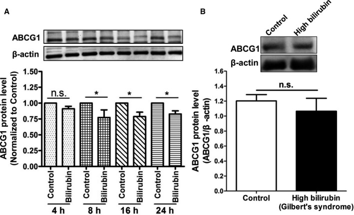 Expression of <t>ATP‐binding</t> cassette transporter G1 ( ABCG 1) protein in THP ‐1 macrophages treated with bilirubin and in peripheral blood mononuclear cells ( PBMC s) from Gilbert syndrome ( GS ) patients. A, Bilirubin suppresses the expression of ABCG 1 protein in THP ‐1‐derived macrophages. THP ‐1 cells were differentiated for 72 hours with 200 nmol/L phorbol‐12‐myristate‐13‐acetate and then loaded with unlabeled cholesterol for another 24 hours. Cells were treated with bilirubin (17.1 μmol/L) for 4, 8, 16, and 24 hours. The protein levels of ABCG 1 were detected by western blotting. Control was treated with solvent vehicle (0.1% dimethyl sulfoxide). The bar graphs present mean± SD from 3 independent experiments. B, Expression of ABCG 1 protein was not changed significantly in PBMC s from participants with high bilirubin blood levels ( GS ) compared with healthy controls. The protein levels of ABCG 1 were detected by western blotting. The bar graphs present mean± SEM (n=28 per group). * P