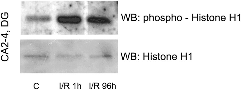 Postischemic enzymatic activity of <t>PKCβII</t> in mitochondrial fraction. PKCβII-immunoprecipitated samples obtained from mitochondrial fraction from the CA2-4/DG of control and ischemic animals (I/R 1 h and I/R 96 h) were incubated with <t>ATP</t> and Histone H1 as a substrate. The reaction mixture was separated by SDS-PAGE and analyzed with anti-phospho-Histone H1 and anti-Histone H1 antibody. The immunoblot shown represents two independent experiments