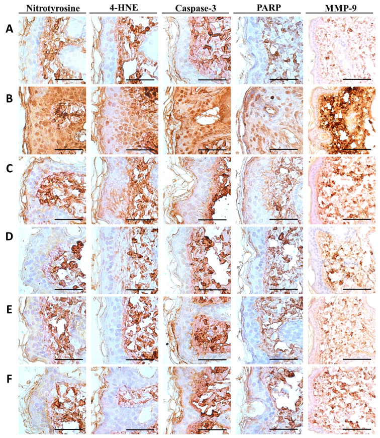 Representative immunohistochemistrical images of dorsal back skin tissues, taken from unexposed intact or UVB-exposed hairless mice. (A) Intact vehicle control; (B) UVB control; (C) UVB-exposed mice treated with 2 ml/kg PCS mice; (D) UVB-exposed mice treated with 100 mg/kg PCP; (E) UVB-exposed mice treated with 200 mg/kg PCP; (F) UVB-exposed mice treated with 400 mg/kg PCP. All avidin-biotin complex immunostaining. Scale bars=50 µm. UVB, ultraviolet B; 4-HNE, 4-hydroxynonenal; PARP, cleaved poly(ADP-ribose) polymerase; MMP-9, matrix metalloproteinase 9; PCP, dried pomegranate juice concentrated powder; PCS, pomegranate juice concentrated solution.