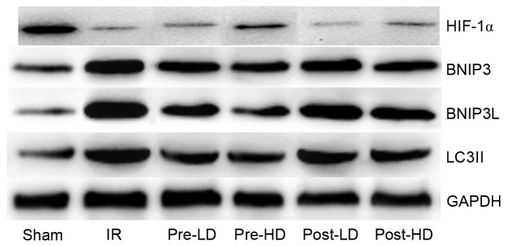 Western blots of BNIP3, BNIP3 L, HIF-1α and LC3II. BNIP3, <t>Bcl-2/adenovirus</t> E1B <t>19-kDa</t> interacting protein 3; BNIP3 L, BNIP3 like; HIF-1α, hypoxia-inducible factor 1α; LC3II, microtubule-associated protein 1A/1B light chain 3B; IR, ischemia-reperfusion; pre-LD, low-dose dexmedetomidine preconditioning; pre-HD, high-dose dexmedetomidine preconditioning; post-LD, low-dose dexmedetomidine postconditioning; post-HD, high-dose dexmedetomidine postconditioning.