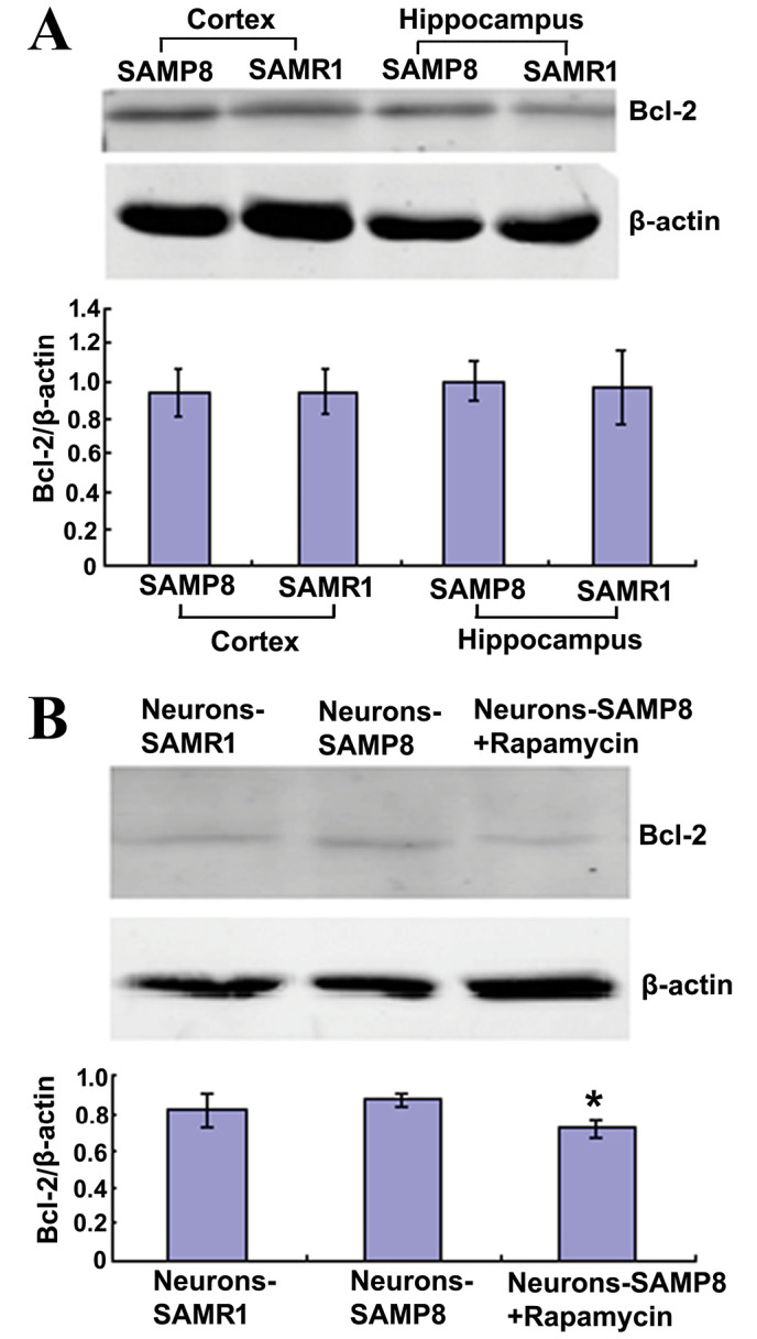 Rapamycin reduced the protein expression levels of Bcl-2 in primary neurons. (A) Protein expression levels of Bcl-2 were similar in the cortex and hippocampus of the two mouse strains. (B) When neurons-SAMP8 were administered 0.5 µM rapamycin, the Bcl-2 protein expression levels declined significantly. *P