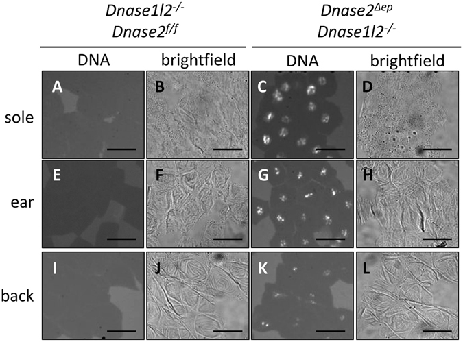 Isolated corneocytes of DNase1L2/DNase2-deficient mice retain DNA in a nucleus-shaped compartment. Corneocytes were isolated from the soles ( A–D ), ears ( E–H ), and back ( I – L ) of wild-type ( A , B , E,F , I , J ) and  Dnase1l2 −/− Dnase2 Δep  ( C , D , G,H , K , L ) mice. The corneocytes were incubated with DNA-specific dye Hoechst 33258 and fluorescence images in which white signals indicate the labeling (left panels) as well as bright-field images under phase contrast (right panels) were recorded. Scale bars, 20 µm.