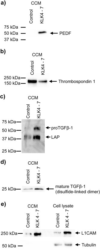 (a,b) Western blot detection of PEDF and thrombospondin‐1 in cell conditioned medium. 30 μg proteome were used with a 12.5% reducing SDS‐PAGE. (c) Western blot detection of <t>LAP/TGFβ‐1</t> in cell conditioned medium. 8 μg proteome were used with a 12.5% reducing SDS‐PAGE. The primary antibody was directed against the LAP domain (prodomain). In line with previous reports (Dubois et al., 1995), the ∼55 kDa band is thought to represent proTGFβ‐1 whereas the predominant ∼40 kDa band is thought to represent LAP. The elevated size in comparison to the primary sequence is thought to stem from glycosylation (Brunner et al., 1992; Dubois et al., 1995). (d) Western blot detection of mature TGFβ‐1 (disulfide linked dimer) in cell conditioned medium. 30 μg proteome were used with a 12.5% non‐reducing SDS‐PAGE. The primary antibody was directed against the actual TGFβ‐1 domain. In addition, N‐terminal degradomics showed TGFβ‐1 activation (see corresponding section). (e) Western blot detection of <t>L1CAM</t> in cell conditioned medium (CCM) and total cell lysate, including cell surface proteins. 8 μg (CCM) and 12 μg proteome (total cell lysate), respectively, were separated with a 7.5% reducing SDS‐PAGE. The molecular weight of 220 kDa for L1CAM is higher than expected but in line with previous reports (Li and Galileo, 2010).
