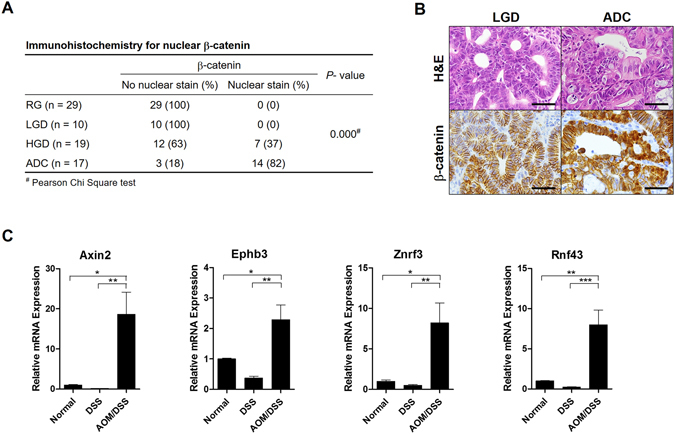 Enhanced Wnt signaling pathway in colitis-associated carcinogenesis. ( A ) Immunohistochemical analysis revealed that nuclear β-catenin staining was negative in all regenerative glands and low grade dysplasia (LGD) samples, but was positive in 37% of high grade dysplasia cases and 82% of adenocarcinomas (ADC). ( B ) Representative pictures of a LGD samples with membranous β-catenin and an ADC with strong cytoplasmic and nuclear β-catenin staining. Scale bar: 25 μm ( C ) Other Wnt-target genes including Axin2, Ephb3, Znrf3, and Rnf43 were upregulated in the azoxymethane and dextran sodium sulfate (AOM/DSS) group compared to expression in the normal and control groups. (Normal: n = 3, DSS: n = 7, AOM/DSS: n = 5). * P