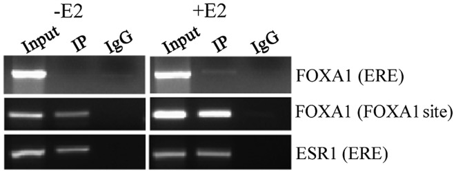Effect of FOXA1 and ESR1 on the PS2 promoter. For ChIP assay, MCF7 cells in the absence or presence of estradiol stimulation were sonicated, lysed and pre-cleared. ChIP with specific antibodies against FOXA1 and ESR1 along with corresponding control Ig G was performed. The nucleotide positions −573 to −315 and −506 to −344 represent the ERE and FOXA1 binding sequences, respectively, in the PS2 promoter. The eluted ChIP DNA samples were subjected to PCR analysis using ERE or FOXA1 site-specific primers. The PCR samples were electrophoresed in a 2% agarose gel. E2, estradiol; Ntd, nucleotide; IP, immunoprecipitation; IgG, immunoglobulin G; FOXA1 , forkhead box protein A1; ERE, estrogen response element; ESR1, estrogen receptor 1; ChIP, chromatin immunoprecipitation; PCR, polymerase chain reaction; PS2 , trefoil factor 1.