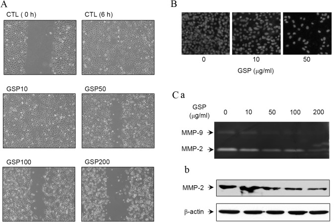 GSP inhibits the migration and invasion of SCC12 cells by reducing <t>MMP-2/9</t> expression and activity. (A) The effect of GSP on the motility of SCC12 cells was assessed using wound-healing assays. Images were captured of migrating cells in the denuded zone (magnification, ×100). (B) The effect of GSP on the invasion of SCC12 cells. Cells were treated with various concentrations of GSP for 24 h and a cell invasion assay was performed. Images were captured of the invaded cells (magnification, ×200). (C) The effect of GSP on the activities and protein expression of MMP-2/9. (C-a) Supernatants of GSP-treated SCC12 cells were loaded into 10% gelatin-containing gel, resolved by electrophoresis and stained with Coomassie blue. (C-b) Total cell lysates were analyzed by SDS-PAGE, followed by probing with anti-human MMP-2 antibody. β-actin was used as a control for protein loading. MMP, matrix metalloproteinase; GSP, grape seed procyanidins; CTL, control.