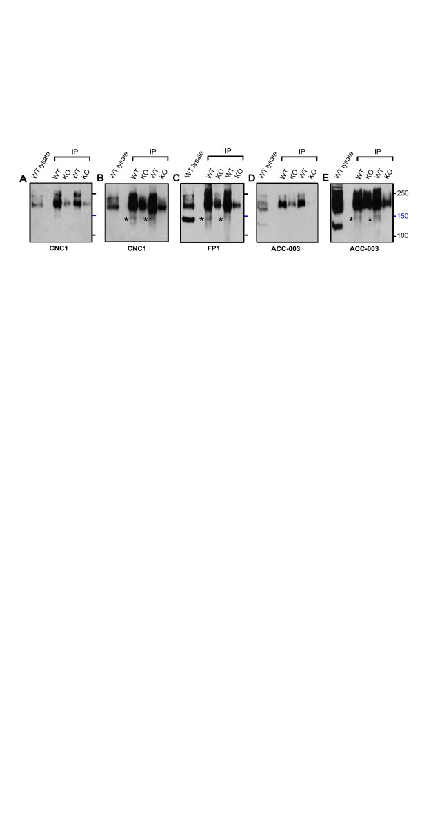 Differential recognition of the strong 150 kDa FP1 band in lysate and weak 150 kDa band by FP1, CNC1, and ACC-003 after IP of α 1 1.2 with FP1. Immunoblots with CNC1 ( A , B ), FP1 ( C ), and ACC-003 ( D , E ) of Triton X-100 extracts from WT mice (lysate) and after immunoprecipitation with FP1 from cKO and WT mice. Gels were polymerized from 8% acrylamide. Note that a weak 150 kDa band is detected by CNC1, FP1, and ACC-003 after enrichment of α 1 1.2 by immunoprecipitation with FP1 but the strongly immunoreactive 150 kDa band detected by FP1 in lysate is not detectable by either CNC1 or ACC-003.