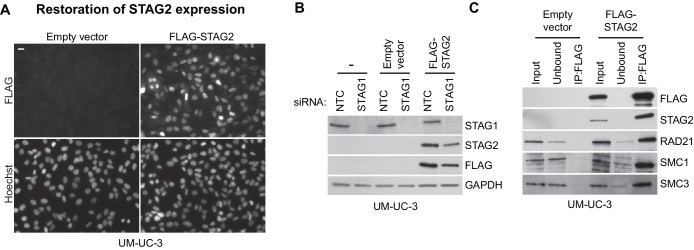 Restoration of STAG2 protein expression in UM-UC-3 bladder cancer cells. STAG2- deficient UM-UC-3 cells were transduced with lentiviral particles encoding no transgene (empty vector) or a 3xFLAG-tagged STAG2 transgene (FLAG-STAG2). Stable selected cell pools were used for further analysis. ( A ) Expression and nuclear localization of the transgenic FLAG-STAG2 protein was assayed by immunofluorescence microscopy. ( B ) Non-transduced UM-UC-3 cells, UM-UC-3 cells transduced with an empty vector and UM-UC-3 cells transduced with a FLAG-STAG2 transgene were transfected with NTC or STAG1 <t>siRNA</t> duplexes. Protein lysates prepared 72 hr after siRNA <t>transfection</t> were analyzed by immunoblotting. ( C ) Protein extracts prepared from UM-UC-3 cells expressing no transgene (empty vector) or a FLAG-STAG2 transgene were subjected to anti-FLAG immunoprecipitation. The input, unbound and precipitated fractions were analyzed by immunoblotting. Co-precipitation of cohesin subunits was only detected in FLAG-STAG2 expressing cells indicating successful incorporation of the transgenic STAG2 protein into the cohesin complex. DOI: http://dx.doi.org/10.7554/eLife.26980.015