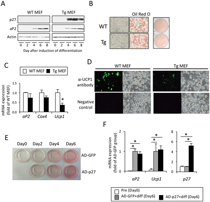 Expression of p27 has no effect on adipocyte differentiation. ( A – D ) Mouse embryonic fibroblasts (MEFs) prepared from WT or aP2-p27 Tg mice embryos at day 16.5 of gestation were cultured and differentiated into adipocytes by treatment with 0.5 mM IBMX and1 µM Dex for the first two days, and subsequently with 10 µg/ml insulin, 50 nM T3, and 10 µM Tro for six days. Assessment of the expression of aP2 during differentiation ( A , C ) and cellular lipid staining with Oil Red O at Day 8 ( B ) showed that there were no differences in adipocyte differentiation between the MEFs of WT and Tg mice. Conversely, the expression of UCP1 mRNA ( C ) and the number of UCP1-expressing cells ( D ) were significantly decreased in MEFs from Tg mice, compared to WT mice, and accompanied by increased p27 expression ( A ) (n = 4 per group, Student's t-test, *p