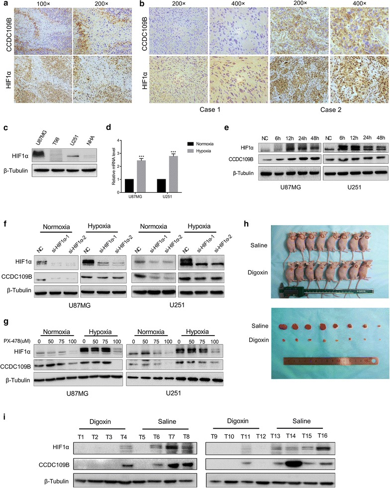 CCDC109B expression is induced by hypoxia and regulated by HIF1α. a Representative IHC images of CCDC109B and HIF1α in primary human GBM tissues. Magnification ×100 and ×200. b Analysis of HIF1α and CCDC109B expression in human GBM tissues by IHC staining. Magnification ×200 and ×400. Representative images were labeled as case 1 and case 2. c Western blot analysis of HIF1α in U87MG, T98, U251 and NHA. d qRT-PCR were used to determine mRNA levels of CCDC109B in U87MG or U251 cells cultured under normoxic or hypoxic conditions. e Western blot analysis for HIF1α and CCDC109B protein levels in U87MG and U251 cells cultured under hypoxia for the indicated time. f Western blot analysis for HIF1α and CCDC109B in U87MG and U251 cells transfected with NC, si-HIF1α-1 or si-HIF1α-2 under normoxic or hypoxic conditions for 48 h. g Western blot analysis for HIF1α and CCDC109B in U87MG and U251 cells treated with PX478 (0, 50, 75, 100 μM) and cultured under normoxic or hypoxic conditions for 48 h. h Representative images of implanted nude mice injected intraperitoneally with saline or digoxin (2 mg/kg) every day for one month. Images for corresponding subcutaneous U87MG xenografts after surgical removal are also shown. i Western blot analysis to determine levels of HIF1α and CCDC109B in tumors from nude mice treated with saline or digoxin. Data are presented as the mean ± SEM (*** P