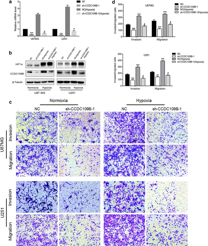 CCDC109B knockdown inhibits hypoxia-induced migration and invasion of glioma cells. U87MG- and U251-NC or -sh-CCDC109B-1 cells were cultured under normoxic or hypoxic conditions for 48 h and the following assays were performed. a qRT-PCR to detect expression of CCDC109B expression; b Western blot analysis for CCDC109B and HIF1α in cell type indicated. c Representative images of Transwell migration and invasion assays performed on U87MG- and U251-NC and -sh-CCDC109B-1 cells. Cells were seeded into chambers and incubated under normoxia or hypoxia for 24 h. d Graphic representation of cell counts from Transwell assays. Migraded/invaded cells were counted and averaged for each experimental condition. Data are presented as the mean ± SEM (** P