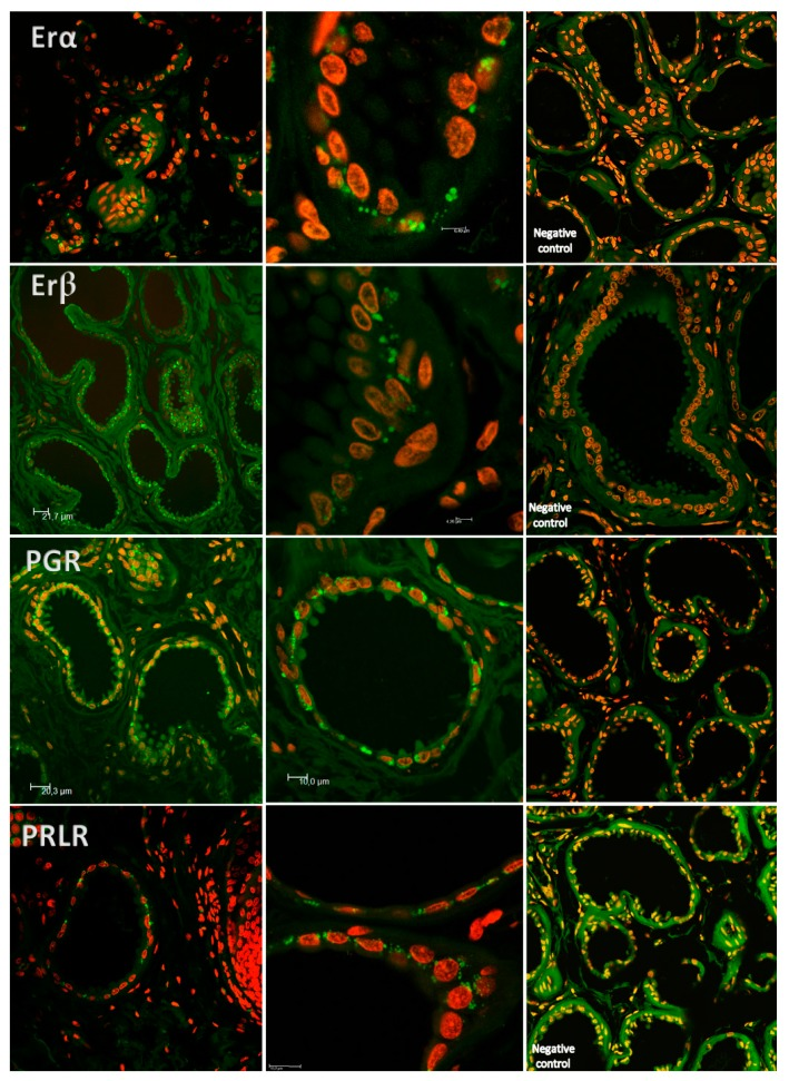 Examples of laser-scanning confocal fluorescence (LSC—lens 63.03 oil) images of IGS. One can observe immunoreactivity towards ESR1, ESR2, PGR and PRLR in cells of the apocrine glands labeled with PE and stained for the different receptors (fluorescence in green). Use of To-Pro-3 iodide for nuclear counterstaining (fluorescence in red).