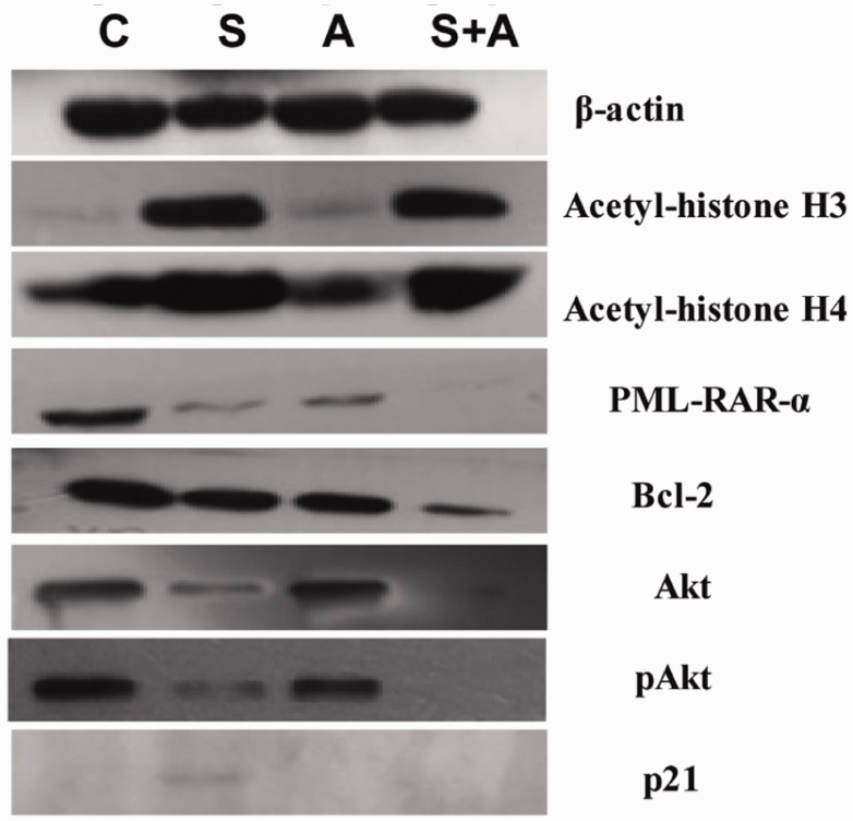 Western blot analysis of protein levels in NB4 cells treated with vorinostat with or without arsenic trioxide (ATO) for 48 h. The proteins detected were as follows: promyelocytic leukaemia (PML)/retinoic acid receptor alpha (RAR-α) fusion protein, Bcl-2, p21, acetyl-histone H3, acetyl-histone H4, Akt and pAkt. β-actin was used as an internal loading control. C: blank control; S: 0.5 µmol/l vorinostat; A: 2 µmol/l ATO; S + A: 0.5 µmol/l vorinostat + 2 µmol/l ATO.