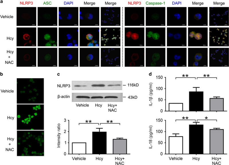 Hcy activated NLRP3 inflammasomes in a ROS-dependent pathway. THP-1-differentiated macrophages were preincubated with NAC (50 mmol/l) for 1 h, then treated with 200 μ mol/l Hcy for 0.5 h ( b ) or 24 h ( a , c, d ). Intracellular ROS levels were measured using a cell-permeable fluorescent probe, 2'7'-dichlorofluorescein diacetate (DCFH-DA). Data are representative of three independent experiments. ( a ) Representative confocal microscopic images showing colocalization of NLRP3 (red) with ASC (green), or NLRP3 (red) with caspase-1 (green) in macrophages. ( b ) Representative confocal microscopic images showing ROS accumulation in macrophages. ( c ) Representative blots and quantitative analysis of NLRP3 to β -actin. ( d ) Levels of IL-1 β and IL-18 in cultured supernatant were measured by ELISA. Hcy, homocysteine; NAC, N -acetyl- l -cysteine. * P