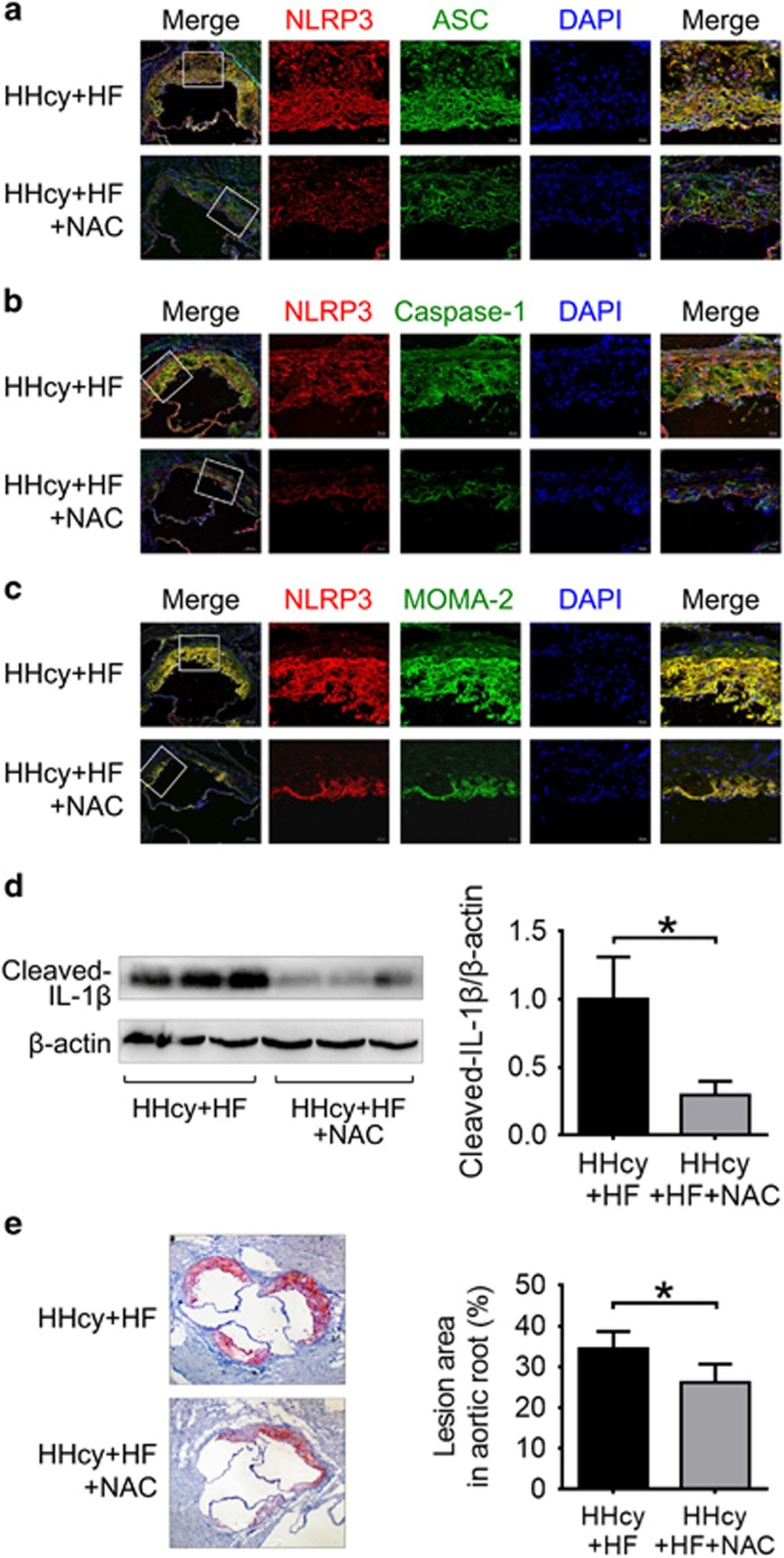 NAC attenuated HHcy-induced NLRP3 inflammasome activation and atherosclerotic lesion formation in apoE −/− mice. ApoE −/− mice were fed high-fat plus high methionine (HF+HM) diet to induce HHcy for 10 weeks. Mice were given a daily i.p. injection of either saline ( n =6) or antioxidant NAC (Sigma, 20 mg/kg/day, n =8) three times per week on alternate days over 10 weeks of HF+HM diet. Mouse aortas and hearts were harvested. Serial sections of aortic roots were harvested and double immunofluorescent stained or stained with Oil red O. Representative confocal microscopic images showing colocalization of NLRP3 (red) with ASC (green) ( a ), NLRP3 (red) with caspase-1 (green) ( b ) and NLRP3 (red) with MOMA-2 (green) ( c ) in atherosclerotic lesion of aortic root sections. ( d ) Representative blots and quantitative analysis showing the cleaved IL-1 β in aorta. ( e ) Oil red O staining showing the atherosclerotic lesions and quantitative analysis of atherosclerotic lesion area in the aortic root. HHcy, hyperhomocysteinemia; NAC, N -acetyl- l -cysteine. * P