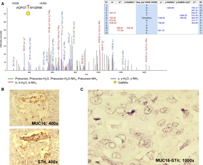 (A) Exemplificative annotated nanoLC‐ESI‐LTQ‐Orbitrap‐CID‐MS/MS spectra for a MUC16 glycopeptide substituted with a HexNAc residue evidencing the specific glycosite; (B) colocalization of MUC16 and STn in bladder tumours by immunohistochemistry; (C) expression of MUC16 STn glycoforms in bladder tumours based on PLA analysis. This work identified for the first time MUC16 in bladder tumours and its association with abnormal glycoforms such as the STn antigen. The mass spectrum shows a MUC16 glycopeptide substituted with a HexNAc residue, strongly suggesting the presence of STn. The colocalization of MUC16 and STn (B) in bladder tumours also reinforces this hypothesis. Finally, the red dots on the PLA image (C) in areas of colocalization result from the simultaneous detection of both antigens, reinforcing this evidence.