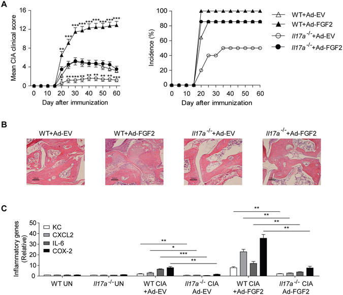 FGF2 cooperates with IL-17 to promote CIA pathogenesis. ( A ) Mean clinical scores and disease incidence of CIA in C57/BL6 wild type mice or Il17a −/− mice treated with empty virus (Ad-EV) or adenovirus expressing FGF2 (Ad–FGF2) once a week from day 15 after CIA induction (n = 10–14 per group). ( B ) H E histology of the representative ankle sections from C57/BL6 wild type or Il17a −/− mice treated as in ( A ). ( C ) Quantitative mRNA expression of KC, CXCL2, IL-6 and COX-2 in the joints of C57/BL6 wild type or Il17a −/− mice treated as in ( A ) (n = 3–4 per group). Data are representative of two ( A – C ) independent experiments (mean and s.e.m. in A , C ). * P