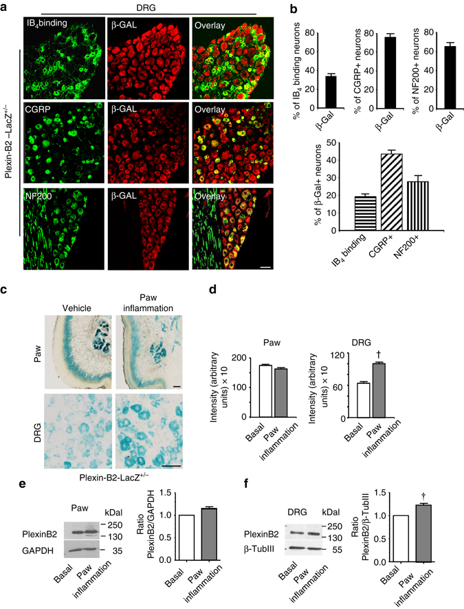 Analysis of Plexin-B2 expression in sensory neurons of the dorsal root ganglia (DRG) in adult mice and its regulation in inflammatory pain. a , b Expression of plxnb2 via immunofluorescence analysis of β-galactosidase in adult DRG in respective LacZ reporter knock-in mice. Typical examples a and quantitative analysis b of the distribution of DRG cell types expressing plxnb2 via co-immunolabeling with marker proteins ( n = 10–20 sections/group taken from at least three different mice/group). Scale bar , 50 µm. c , d Typical examples c and quantitative summary d of LacZ staining demonstrating plxnb2 expression in adult Plexin-B2-LacZ +/− mice following intraplantar injection of either vehicle (control) or Complete Freund´s Adjuvant (CFA) stimulating inflammatory pain ( n = 20–30 sections/group taken from at least 3 different mice/group). Scale bars represent 50 µm. In d , Student's t -test (two sides) was performed. P