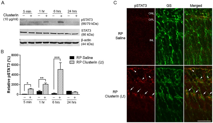 Up-regulation of STAT3 by clusterin in RP retina. The phosphorylated STAT3 immunoreactive protein was examined by immunoblot analysis in saline- and clusterin-treated RP retinas (A). Retinas were collected at 5 min, 1 hour, 6 hours, and 24 hours after injection at P15. Expression of pSTAT3 was up-regulated at 5 min. and peaked at 6hrs after injection of clusterin (+). In contrast, saline-treated retinas (-) showed slight activation of STAT3 throughout the time points after injection. Densitometry analysis of pSTAT3 was shown by measuring the intensity relative to control β-actin (B). Beta-actin and STAT3 served as the loading control. Confocal micrographs of immunoreactivity of pSTAT3 (red) and GS (green) in vertical sections of P15 RP retina, which were collected 6 hours after saline and clusterin injection (C). In saline-treated RP retina, no pSTAT3 immunoreactivity was observed. In clusterin-treated RP retina, pSTAT3 immunoreactivity was detected in the processes in the ONL and INL. Double-labeling experiments showed that processes of Müller cells and their cell bodies were co-localized with pSTAT3 immunoreactivity (arrows). In addition, some processes of Müller cells in the ONL were also labeled with pSTAT3 (arrowheads). Bars mean ± SEM, *P = 0.0224, **P = 0.0031, *** P