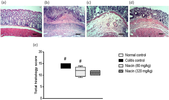 Effect of niacin on histopathological changes of rat colon in iodoacetamide model of colitis. ( a ) Normal control rat: normal histological structure of mucosa, ( b ) Colitis control rat showing necrosis of epithelium, inflammatory infiltrate in mucosa and submucosa as well as submucosal oedema, ( c ) Niacin (80 mg/kg) pretreated rat showing moderate inflammatory infiltrate in lamina propria and submucosa, (d) Rat pretreated with niacin (320 mg/kg) showing minimal changes. (H E staining, ×100 original magnification). ( e ) Total histology score, data are expressed as box plots of the median of at least six animals. # P ≤ 0.05 vs. normal control.