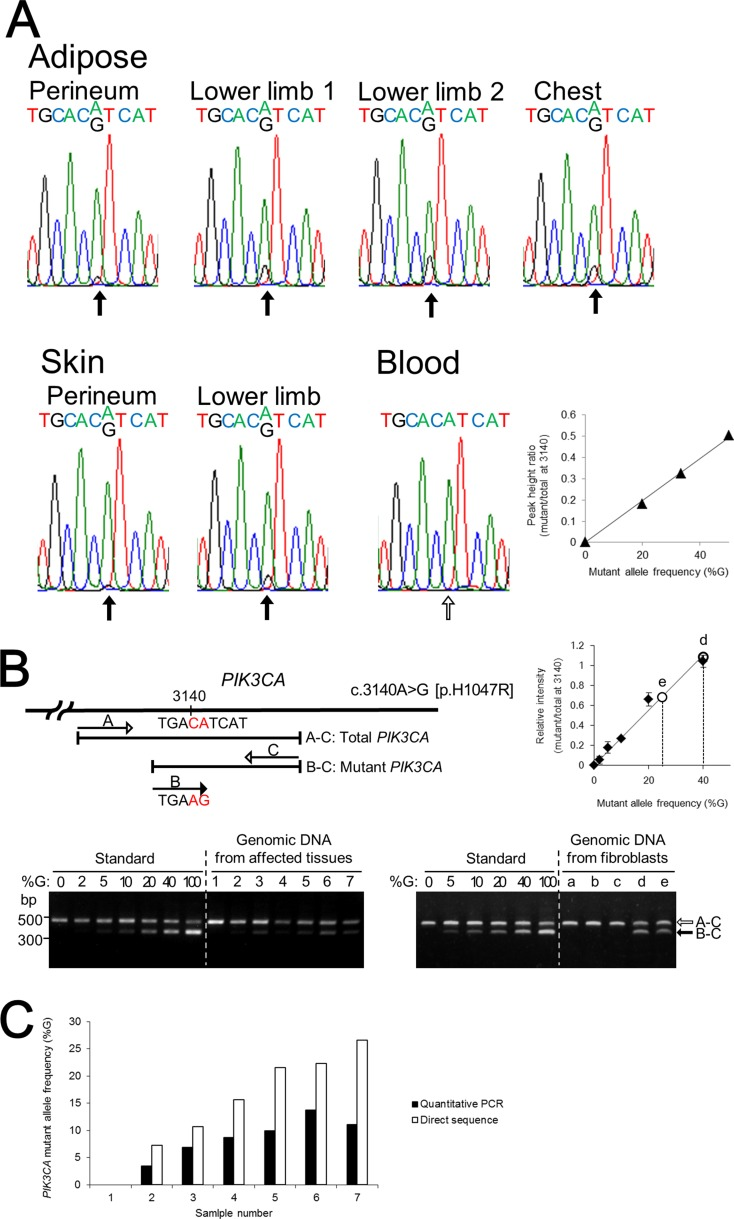 The identification and quantification of the mutation in PIK3CA ( A ) Direct nucleotide sequence analysis of PIK3CA was performed using isolated genomic DNA from blood and six different regions including subcutaneous adipose tissue and skin from the lower limbs. A mosaic mutation (c.3140A > G [p.H1047R]) in exon 20 was identified from affected adipose tissues and skin. The ratios of the mutant allele are different in the patient's affected tissues. Direct nucleotide sequence analysis was performed with plasmids containing normal or mutant PIK3CA fragment as standard reference materials. The right panel shows a standard curve for calculating PIK3CA mutant frequency by direct sequencing. ( B ) Multiplex PCR products of genomic DNA isolated from affected tissues, blood cells, and fibroblast cells were run through a 1.5% agarose gel and stained with ethidium bromide. Plasmids containing PCR products of wild-type and mutant PIK3CA exon 20 were used as standard reference materials. A 370-bp DNA fragment was generated from the mutant allele of PIK3CA (black arrow) and a 480-bp fragment was generated from both the wild-type and mutant PIK3CA alleles, as the internal control (white arrow). The sizes of the DNA markers are indicated on the left side. The upper right panel shows the standard curve for calculating PIK3CA mutant frequency by multiplex PCR. Lane: 1, blood; 2, skin from the perineum; 3, adipose tissue from the perineum; 4, skin from the lower limb; 5, adipose tissue from lower limb–1; 6, adipose tissue from the chest; 7, adipose tissue from lower limb–2; a, control fibroblast C2; b, control fibroblast C3; c, NHDF-c; d, PROS fibroblast from the skin of the lower limb; e, PROS fibroblast from the skin of the perineum. ( C ) PIK3CA mutant allele frequencies at nucleotide position 3140 in the patient's affected tissues and blood lymphocytes were calculated by quantitative multiplex PCR and direct sequencing. The x-axis labels are the same as in (B).