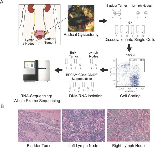 Analysis schematic Radical cystoprostatectomy and extended pelvic lymph node dissection were performed, and fresh tissue from four regions of the bladder tumor and representative left and right lymph nodes were dissociated into single cell suspensions and fluorescence activated cell sorting isolated the EPCAM + CD44 + CD49f + cancer cell subpopulation. DNA and RNA were isolated from the bulk tumor regions (samples A-D) and lymph nodes (samples L and R) and the corresponding cancer cell subpopulations (denoted with′) and utilized for whole-exome sequencing and RNA-sequencing (A) . Representative histology of primary tumor, left and right sampled lymph nodes (B) .