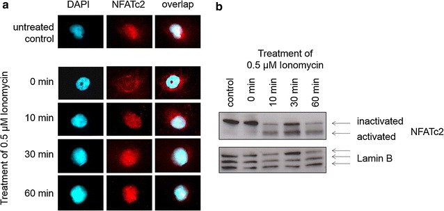 NFATc2 becomes translocated into the cell nucleus after stimulation with Ionomycin. Pancreatic tumor cells mixed with serum-free medium for 3 h were stimulated with 0.5 µM of Ionomycin for 0, 10, 30, and 60 min. Evidence is provided by means of NFATc2 antibodies in Western blot analysis ( b ) or by immunofluorescence ( a ). Cell nuclei ( blue ) are stained with DAPI and endogenous NFATc2 ( red ) with alexarot