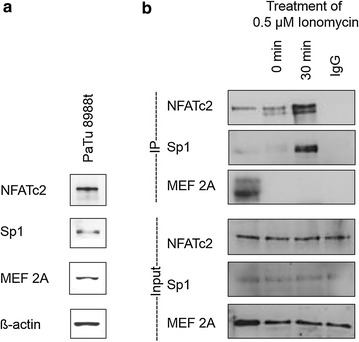Endogenous expression of NFATc2 partner proteins described in the literature and their physical interaction during immunoprecipitation. Proteins were verified in Western blot analysis using the antibodies NFATc2, Sp1, and MEF 2A as well as the loading control ß-actin ( a ). NFATc2 including its interaction partner was subsequently extracted by means of immunoprecipitation ( b )