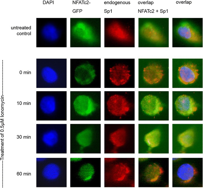 Co-localization of NFATc2 and the transcription factor Sp1. PaTu 8988t cells were transiently transfected with NFATc2-GFP. The cells either remained in serum containing medium or, after 24 h, serum was removed for 3 h, and the cells were stimulated with 0.5 µM of Ionomycin for 0, 10, 30, or 60 min. The cells were fixed into paraformaldehyde and incubated with the Sp1 antibody. Cell nuclei ( blue ) are stained with DAPI, endogenous Sp1 ( red ) with alexarot, and NFATc2-GFP green