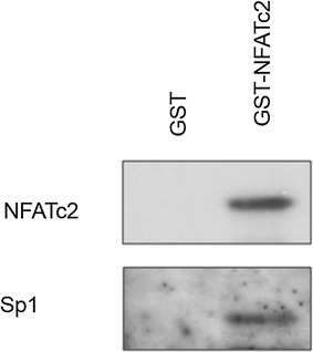 Direct interaction between NFATc2 and Sp1 in GST pull-down assay. Bacteriologically expressed GST and GST-NFATc2 as well as Sp1 previously over-expressed in the pancreatic tumor cells were examined by means of GST pull-down assay; precipitates were determined by Western blot analysis