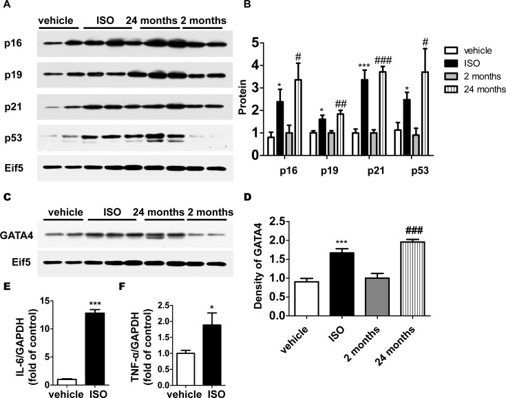 Expression of CDKIs and GATA4 increased in ISO-treated cells. (A) The protein level of cell cycle inhibitors and Eif5 (loading control) was examined by western blotting. (B) The protein level was quantified by densitometry. (C) The protein level of GATA4 and Eif5 was examined by western blotting and (D) quantified by densitometry. The gene expression of SASP factors (E) and (F) was examined with the use of quantitative RT-PCR. Data are means ± SEM (n = 6; *P