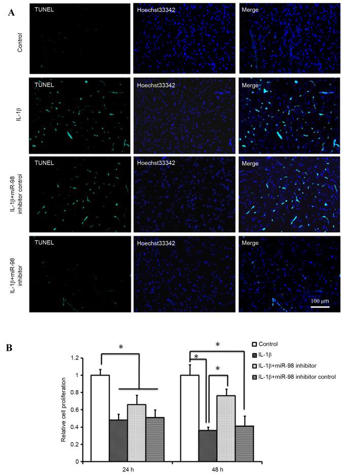 Effects of miR-98 on chondrocyte apoptosis and proliferation following IL-1β treatment. (A) Detection of apoptotic cells using TUNEL staining and (B) cell proliferation by MTT assay. Transfection with miR-98 inhibitor reduced the number of TUNEL-positive chondrocytes and promoted chondrocyte proliferation compared with transfection with miR-98 inhibitor control or treatment with IL-1β only (n=6/group). *P