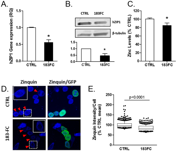 ZIP1 mRNA, hZIP1 protein and zinc levels were lower in miR-183-FC cells. ( A ) hZIP1 mRNA gene expression measured by RT-qPCR in RWPE1-CTRL and RWPE1-183FC cells. ( B ) ZIP1 protein levels measured by immunoblot and quantified. ( C ) Chromogenic zinc assay in RWPE1-CTRL and 183FC cells (n = 3 experiments). Mean shown with SEM. ( D ) Zinquin (blue) fluorescence in RWPE1-CTRL and RWPE1-183FC cells was imaged with confocal microscopy. Naïve RWPE1 cells were mixed with GFP+ cells. Arrows indicate GFP+ transduced RWPE1 cells. ( E ) Zinquin intensity quantified per cell by inForm™ image analysis in RWPE1-CTRL and RWPE1-183FC cells. N = 3 experiments were analyzed as percentage of CTRL mean per experiment. Data from all 3 experiments were analyzed together by Mann-Whitney nonparametric test and are shown as boxplots with mean (line), 25–75% (box) and 95% confidence intervals (whiskers) and individual cell outliers. *p