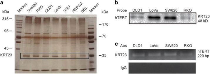 KRT23 was identified and validated as a transcription factor of hTERT in CRC cells. ( a ) A streptavidin–biotin pulldown assay was performed to identify the specific proteins that bind to the hTERT promoter. Nuclear extracts prepared from human CRC cells (SW620, RKO, DLD1 and LoVo) and hepatoma carcinoma cells (SNU, HEPG2 and BEL) were incubated with a biotin-labeled hTERT promoter probe and streptavidin–agarose beads. The DNA–protein complexes were separated by SDS-PAGE, and the protein bands were visualized by silver staining. The protein bands (at ~35 kDa) were excised from the gel and identified by the mass spectrum analysis. We predicted that the candidate CRC-specific hTERT promoter-binding protein was KRT23. ( b ) Immunoblot assay for detecting KRT23 binding to the hTERT promoter probe. KRT23 protein in the DNA–protein complexes was detected by western blot assay using an anti-KRT23 antibody. ( c ) Chromatin immunoprecipitation (CHIP) assays were performed using the hTERT promoter from human CRC cells (SW620, RKO, DLD1 and LoVo). PCR products were separated on 1% agarose gels. Normal immunoglobulin G (IgG) was the negative control for the KRT23 antibody