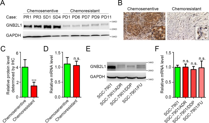 Chemoresistant gastric cancer is associated with decreased protein level of GNB2L1. (A-C) Protein levels of GNB2L1 in tumor tissues from chemosensitive patients and chemoresistant patients were determined by WB (A) and IHC (B-C). Representative images (A-B) and statistical data (C) were shown. (D) Transcriptional levels of GNB2L1 in tumor tissues were determined by qPCR. (E-F) Protein levels and mRNA levels of GNB2L1 were further assessed in SGC-7901 cells and several chemoresistant cells derived from SGC-7901 cells. Progressive disease (PD) was considered as chemoresistant; complete remission (CR), partial remission (PR) and stable disease (SD) as chemosensitive. GAPDH was used as loading control. N.S., not significant; ***, P