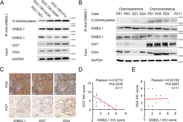 OGT elevated O-GlcNAcylation on GNB2L1 in chemoresistant gastric cancer. (A-B) The O-GlcNAcylation levels of GNB2L1 in different chemoresistant cells (A) and different tissue samples (B) were assessed via IP analysis, and protein levels of OGT and OGA were also determined via WB. Progressive disease (PD) was considered as chemoresistant; complete remission (CR), partial remission (PR) and stable disease (SD) as chemosensitive. GAPDH was used as loading control.(C-E) Correlation analysis of GNB2L1 levels with OGT (D) or OGA (E) in chemoresistant gastric cancer patients. Representative images (C) and statistical data (D-E) were shown. *, P