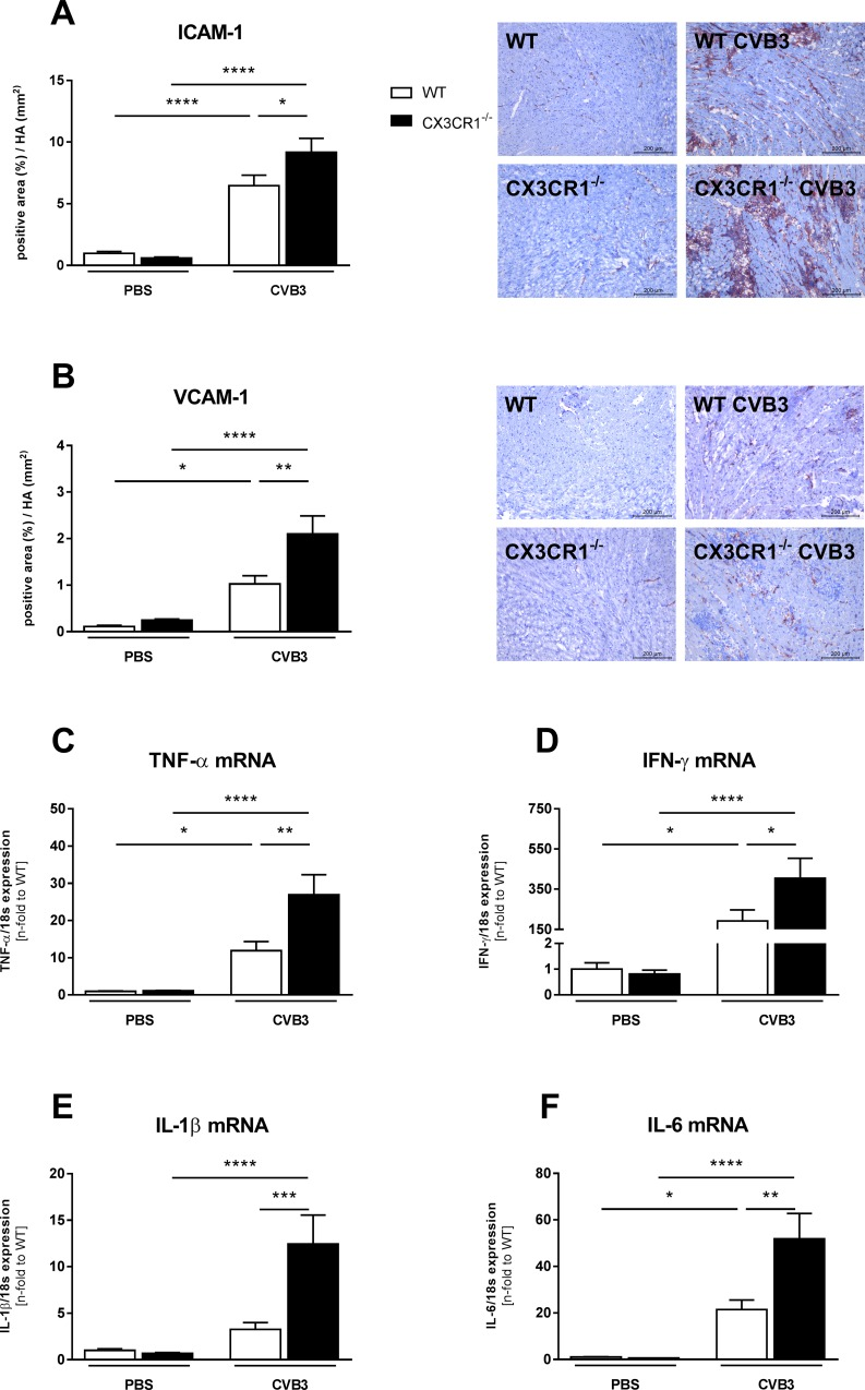 CX3CR1 -/- enhances left ventricular expression of adhesion molecules and pro-inflammatory cytokines in Coxsackievirus B3-infected mice. Induction of ICAM-1 (A) and VCAM-1 (B) as well as of pro-inflammatory cytokines (C-F) in CX3CR1 -/- mice compared to WT CVB3 mice. The quantitative determination of ICAM-1 and VCAM-1, indicated by the positive area (%) in relation to the heart area (mm 2 ), was performed via digital image analysis at a 200x magnification (scale bar = 200 μm). Bar graphs represent the mean ± SEM. Statistical analysis was performed by One-way ANOVA or the Kruskal-Wallis test. *p