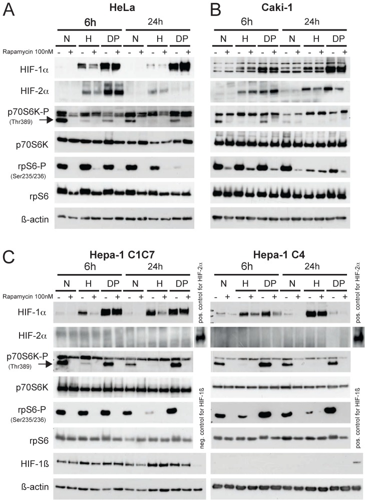Immunoblot analysis of (A) Hela, (B) Caki-1 and (C) Hepa-1 cells. Cells were exposed to either normoxia (N, 21% O 2 ), hypoxia (H, 1% O 2 ) or DP (Dipyridyl, 100µM) treatment for 6 or 24 hours. 30µg of total cell lysate was loaded and western blotting was performed for the following proteins: HIF-1α, HIF-2α, p70S6K-P (Thr 389), p70S6K, rpS6-P (Ser 235/236), rpS6 and ß-actin. Hepa-1 cells are either wildtype cells (Hepa-1 C1C7) or HIF-1ß deficient (Hepa-1 C4). Therefore, these cells were additionally analyzed for the expression of HIF-1ß. The mTOR inhibitor rapamycin was applied 45 minutes prior to hypoxic/pharmacological exposure at a concentration of 100nM.
