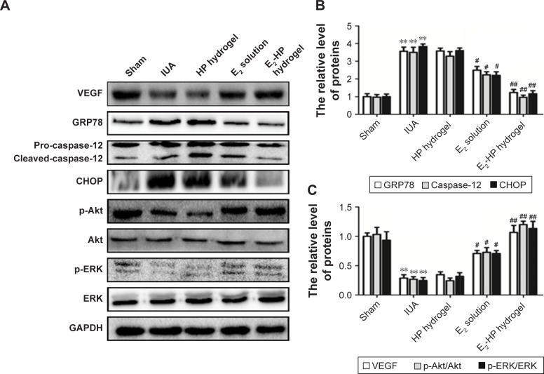 E 2 -HP hydrogel inhibits ER stress and activates the Akt and ERK1/2 pathways in the IUA rats. Notes: ( A ) The protein expressions of VEGF, GRP78, caspase-12, CHOP, p-Akt, and p-ERK in each group were tested with Western blotting. GAPDH was used as the loading control and for band density normalization. ( B ) The optical density analysis of GRP78, caspase-12, and CHOP protein. ** P