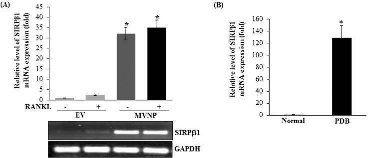 MVNP induces SIRPβ1 in normal human bone marrow derived mononuclear cells. (A) Cells were transduced with EV or MVNP retroviral expression plasmid and stimulated with and without M-CSF (10 ng/ml) and RANKL (100 ng/ml) for 48 h. Total RNA isolated was subjected to real-time RT-PCR analysis for SIRPβ1 expression. (B) SIPRβ1 mRNA expression in patients with PDB. Total RNA isolated from normal (n = 5) and Paget's patients (n = 4) bone marrow cells were subjected to real-time RT-PCR analysis for SIRPβ1 mRNA expression. The relative level of mRNA expression was normalized by GAPDH amplification. The values are expressed as mean ± SD for three independent experiment (*p