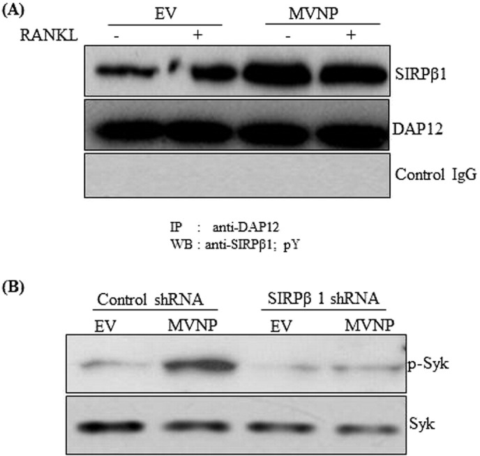 MVNP regulation of SIRPβ1 signaling in preosteoclast <t>cells.</t> (A) MVNP enhances SIRPβ1 interaction with DAP12 in <t>normal</t> <t>human</t> <t>bone</t> <t>marrow</t> <t>mononuclear</t> cells. Cells were transduced with EV or MVNP and stimulated with and without M-CSF (10 ng/ml) and RANKL (100 ng/ml) for 48 h. Total cell lysates obtained from these cells were subjected to immunoprecipitation using anti -DAP12 or control IgG antibodies. Immunoprecipitants were subjected to western blot analysis for SIRPβ1. Total DAP12 expressions in these cells were served for loading control. (B) shRNA suppression of SIRPβ1 inhibits MVNP increased p-syk expression. Normal human bone marrow derived mononuclear cells were transduced with EV or MVNP in the presence and absence of SIRPβ1 shRNA and stimulated with M-CSF (10 ng/ml) and RANKL (100 ng/ml) for 24 h. Total cell lysates were subjected to western blot analysis for p-syk and syk expression.