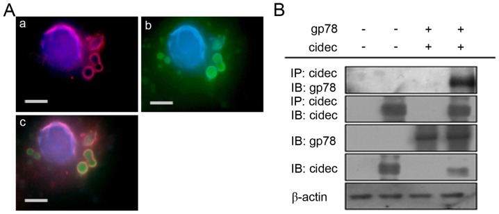 Association between gp78 and cidec in hepatic steatosis. (A) Nuclei were stained with DAPI, (a) gp78 was visualized (fluorescein <t>isothiocyanate</t> conjugated secondary antibody; red staining). (b) Cidec was visualized (tetraethyl rhodamine isothiocyanate conjugated secondary antibody; green staining); (c) Colocalization of gp78 and cidec (yellow) visualized on the surface of lipid droplets using immunofluorescent microscopy and identified by coimmunoprecipitation (scale bar=15 µm). (B) Gp78 and Cidec direct interaction detected by coimmunoprecipitation assay. gp78, glycoprotein; cidec, cell death-inducing DFFA-like effector c.