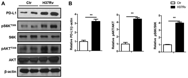 mTORC1 activation contributes to the PD-L1 expression by H37Rv infection. (A) H37Rv stimulated macrophages were collected and processed for immunoblotting. (B) Quantification of PD-L1, phophorylated S6K and Akt expression in (A). All experiments are representative of three similar results. Statistical differences between groups are indicated by the P-values. *P